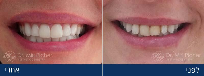 ציפוי שיניים בחרסינה לפני ואחרי
